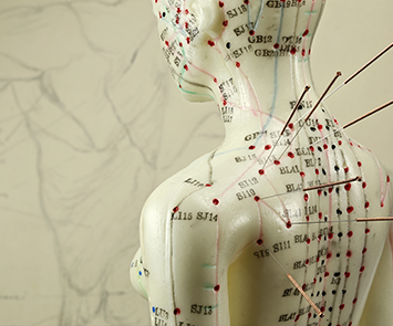 Free Acupuncture or Meridian Therapy Sydney