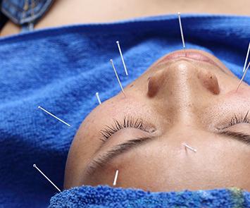 Kiiko Style Japanese Acupuncture